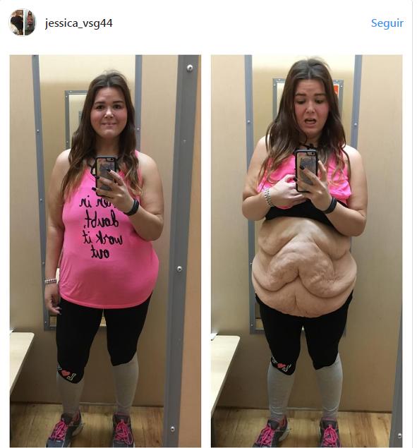 Joven muestra cruda realidad tras bajar más de 80 kilos
