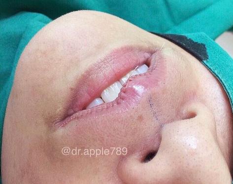 mor.ple_surgery | Instagram