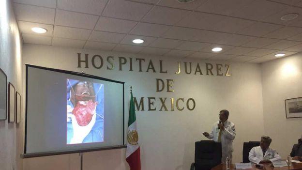 Registro Hospital Juárez