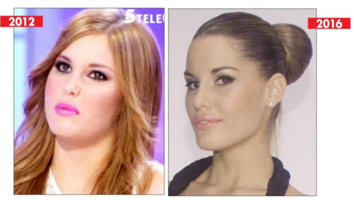 """El """"antes y después"""" de Gala Caldirola, tras el accidente"""