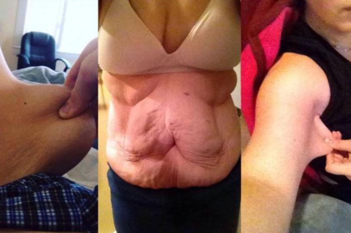 Maxwell y sus impactantes fotos de su exceso de piel | GoFundMe