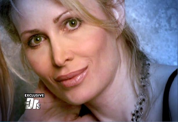 Así lucía antes de las inyecciones Carol   Captura   The Doctors