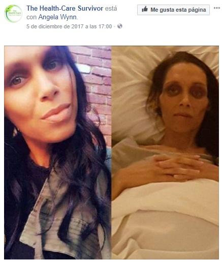 Nicole antes y después de ser diagnosticada de cáncer