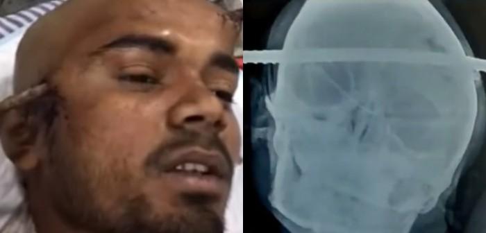 Obrero cayó a un pozo y un fierro le atravesó la cabeza en India: sobrevivió de milagro