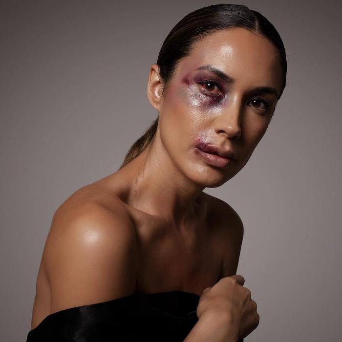 """Vanesa Borghi impactó en redes con fotos con """"moretones"""" y """"heridas"""" para campaña contra el bullying"""