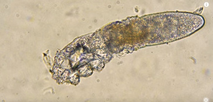 acarros demodex folliculorum