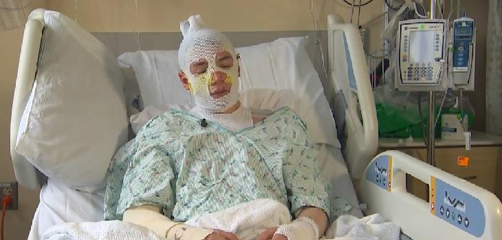 Joven hospitalizado tras rescatar a su sobrina de 8 años de un incendio
