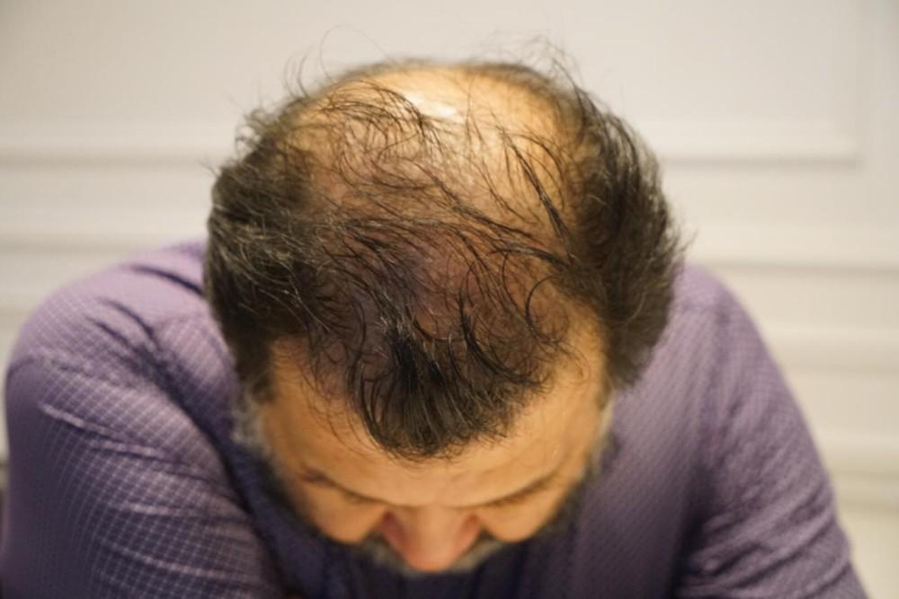 tratamiento capilar de Carlos Zárate