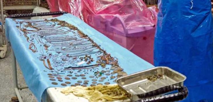 Mujer se sometió a delicada cirugía tras tragarse más de un kilo y medio de joyas