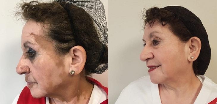 pacientes tratados por vitiligo