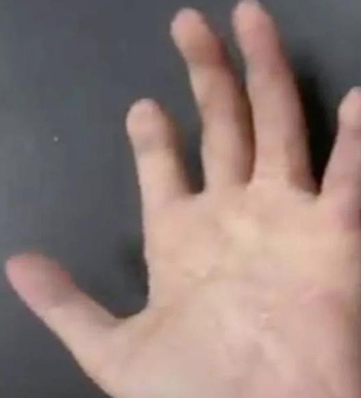 médico se demoró 13 horas en reconstruir una mano totalmente triturada