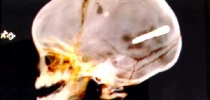 bebe de 10 meses recibio impacto de clavo en su cabeza
