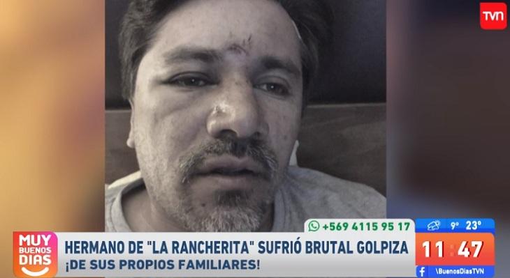 christian figueroa fue golpeado por familiares