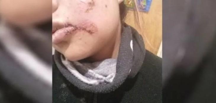 Hombre le quitó parte del labio a su pareja