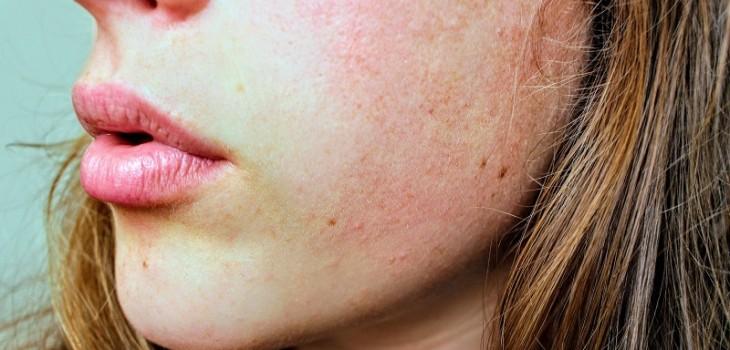 Verdadero y falso: lo que debes saber de la cosmética oil free