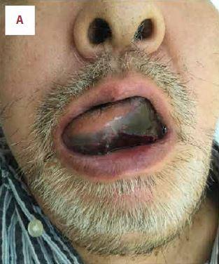 Lengua de hombre se torna negra y sufre 2 paros cardíacos