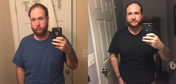 Hombre se fotografió cada mes desde que dejó el alcohol