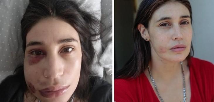 INDH se querella contra Carabineros por apremios ilegítimos sufridos por actriz María Paz Grandjean