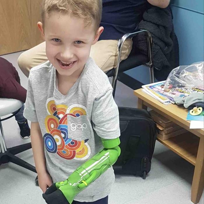 Niño pudo tomar la mano de su papá y hermano por primera vez tras recibir prótesis inspirada en Hulk