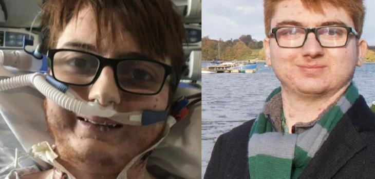 Dom Davies antes y después del trasplante de corazón