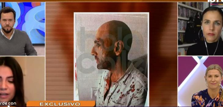 Sergio Jadue ensangrentado
