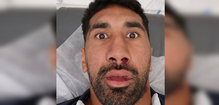 Rugbista de Australia sufrió escalofriante fractura facial