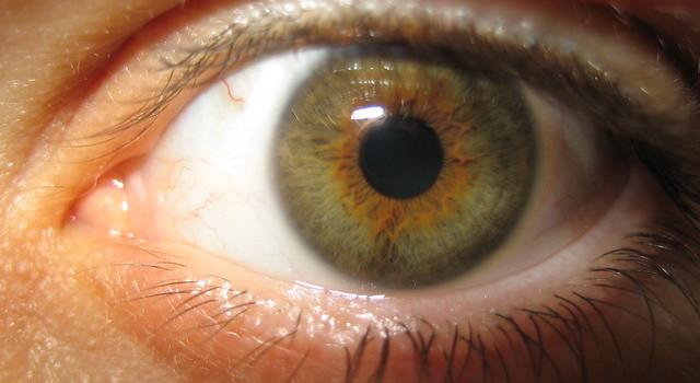 El trastorno ocular que podría estar afectando a tus hijos y que se incrementa al refregar los ojos