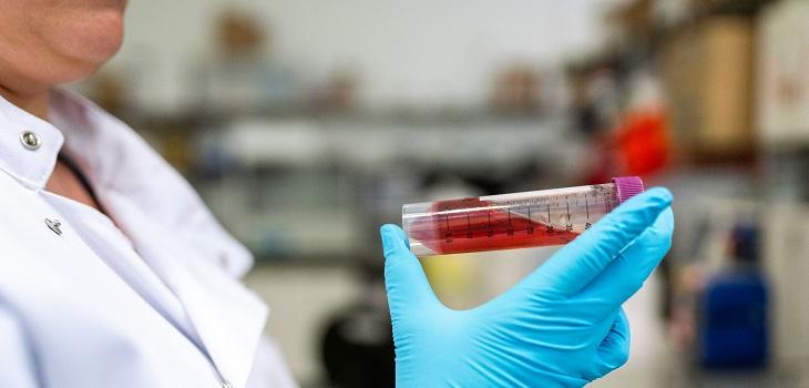 Examen de sangre, análisis de sangre