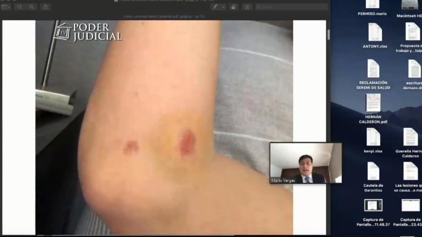 Fotos de heridas de Nano Calderón