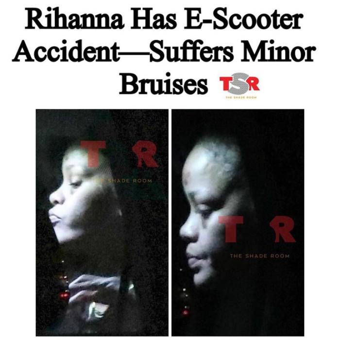 Los moretones de Rihanna tras caída en scooter | TMZ