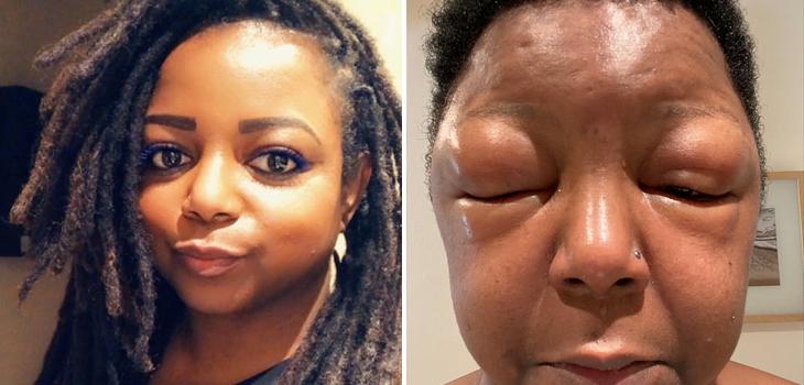 mujer sufrió reacción alérgica a tinte para el pelo