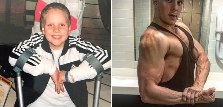 Médicos le dijeron que no volvería a caminar bien y hoy es entrenador fitness