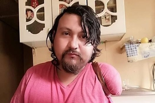 Sebastián Roa, joven que perdió extremidades, pide trabajo