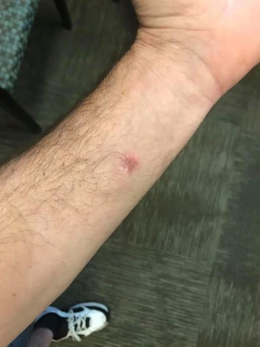Hombre vivió cuatro años con espina alojada en su brazo: pensaba que era un tendón roto