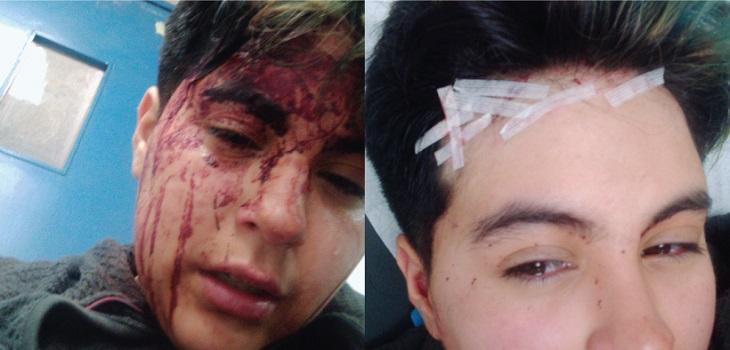 joven trans fue atacado