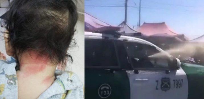 Defensoría de la niñez presentó denuncia por uso de gas pimienta en Bajos de mena