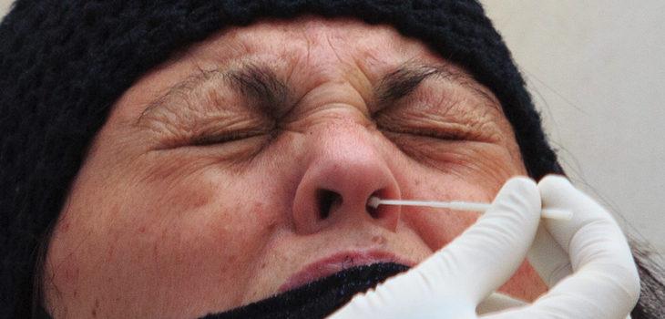objeto alojado en nariz