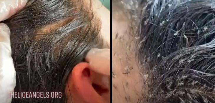 Viralizan video de niña con más de 15 mil piojos: busca advertir riesgos de no tratarlos a tiempo